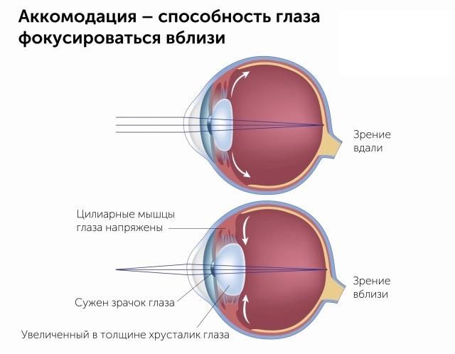 Как я не сделала лазерную коррекцию зрения Зрение, Лазерная коррекция, Офтальмолог, Спазм аккомодации, Миопия, Осанка, Длиннопост