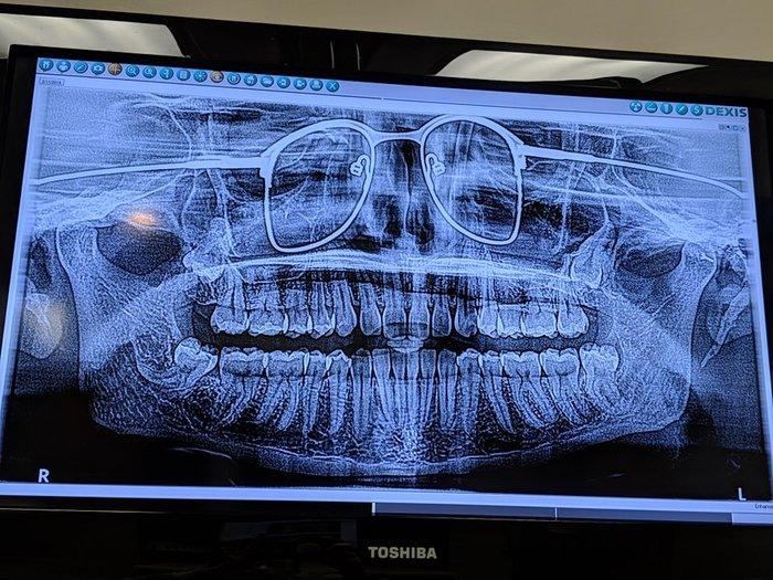 Делали панорамный рентгеновский снимок челюсти и забыли снять очки