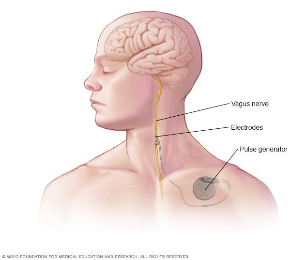 Нейростимуляция для лечения мигрени Эксперименты над людьми, Мигрень, Нейростимуляторы, Длиннопост