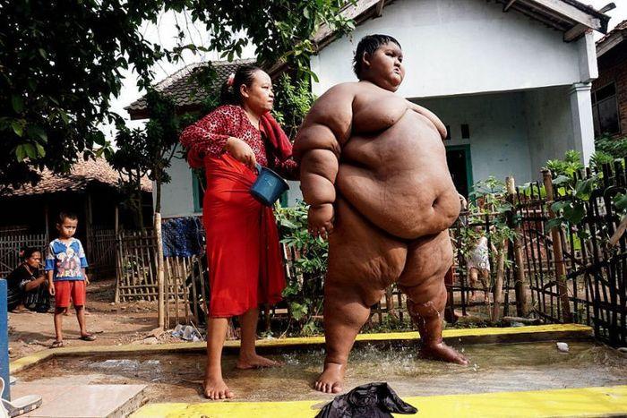 Самый толстый мальчик в мире утратил свой титул Арья Пермана, Похудение, Индонезия, Длиннопост, Ожирение