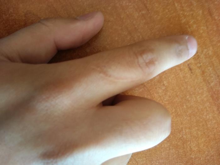 Шрам на моем указательном пальце Мой палец, Пальцы, Шрам