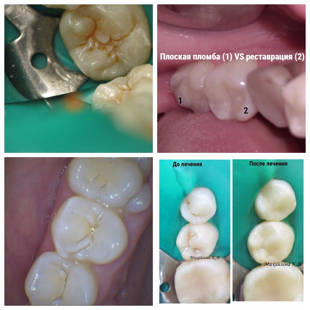 Како уклонити рачун из зуба код куће